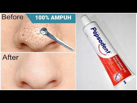 Jenis Jerawat dan Cara Mengatasinya | Skincare101.