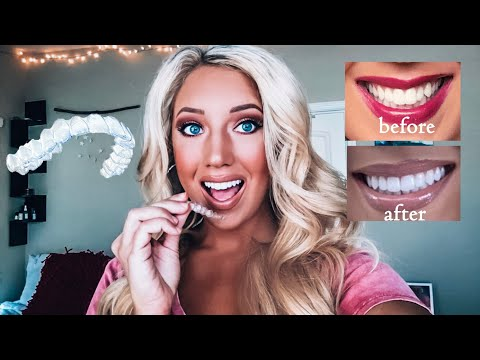 INVISALIGN | EVERYTHING YOU NEED TO KNOW | MY EXPERIENCE | OPINIONS ON SMILE DIRECT CLUB