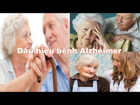 signs-to-recognize-alzheimer's-disease