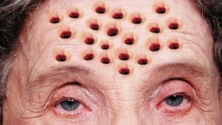 Trypophobia; Fear of Holes! Cysts, Pimples, Blisters, and Smallpox?