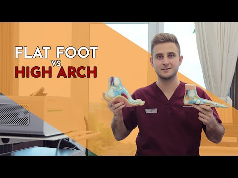 Is Having a High Arch Worse than a Flat Foot? Lewis Nurney, Singapore Podiatrist