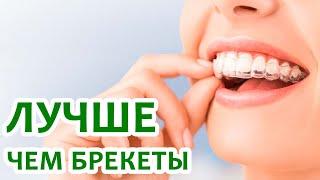 Буркова Светлана Дмитриевна(Doctor Dent, Астана), ортолайнеры.(, 2016-08-24T09:40:52.000Z)