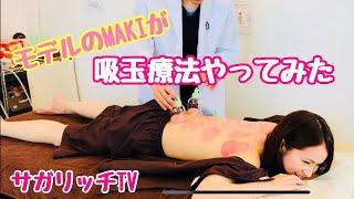 モデルがデトックス効果が期待できる「吸玉療法」をやってみた!
