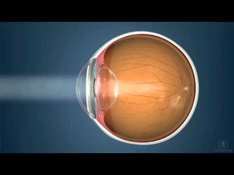 Nearsighted, Farsighted, Reading Vision-what Does This Mean? | Katzen Eye Group