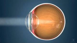 Nearsighted, farsighted, reading vision-what does this mean?   Katzen Eye Group