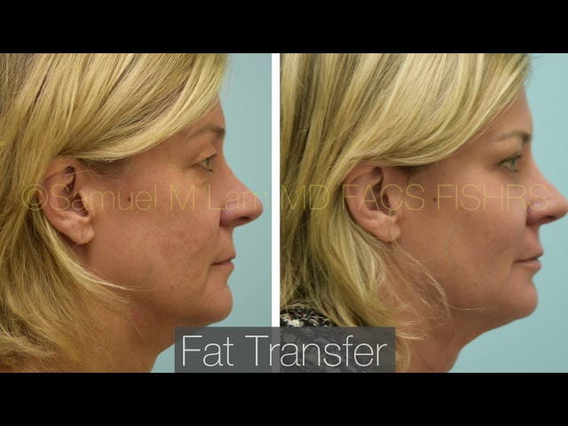 Dallas Fat Transfer Before and After