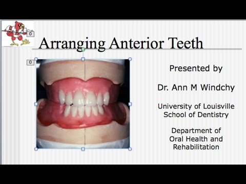 anterior teeth - Yolar.cinetonic.co