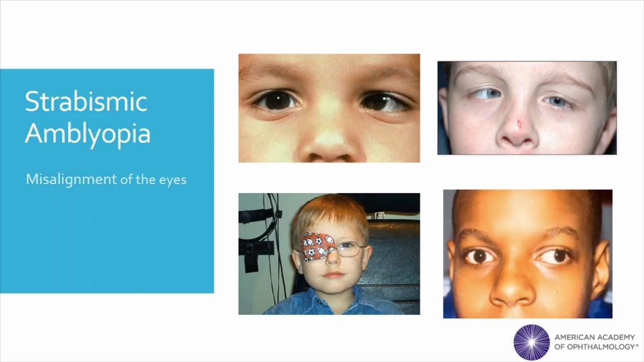 Hyperopia megelőzése Hogyan történik a hyperopia kezelés a gyermekeknél?