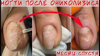 Онихолизис ногтей двухлетней давности Часть 2