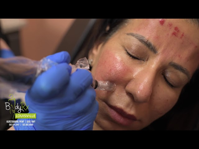 PRP with MICRONEEDLING for the face - Part 2 | Bodyrx Louisville