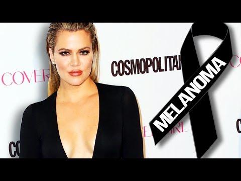Khloe Kardashian Skin Cancer Scare