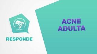 Acne Na Mulher Adulta - SBD Responde #12