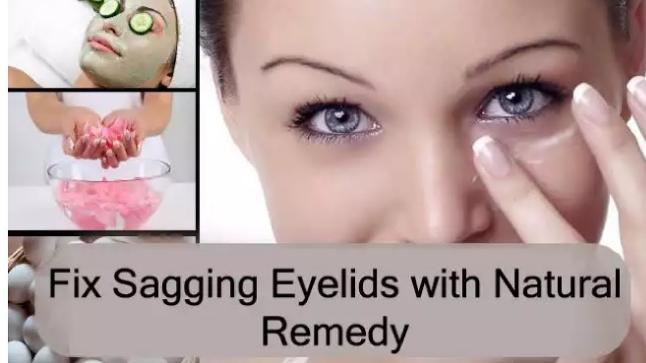 How to even out your eyelids without surgery youtube - Lift Your Droopy Eyelids In Less Than 10 Days How To Fix Droopy Eyelids Without Surgery