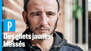 Un an après leurs blessures, des Gilets jaunes racontent