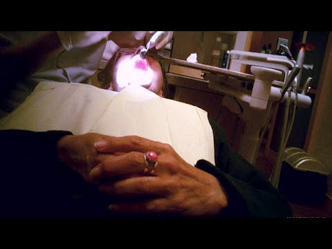Is your dentist ripping you off? Hidden camera investigation (CBC Marketplace)