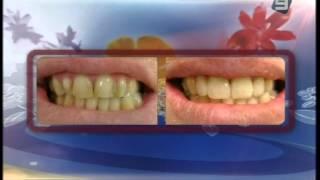 Достижения эстетической стоматологии(Эстетическая стоматология пришла на помощь тем, кого природа не наделила идеальной улыбкой. Широкие возмож..., 2013-04-15T14:26:57.000Z)