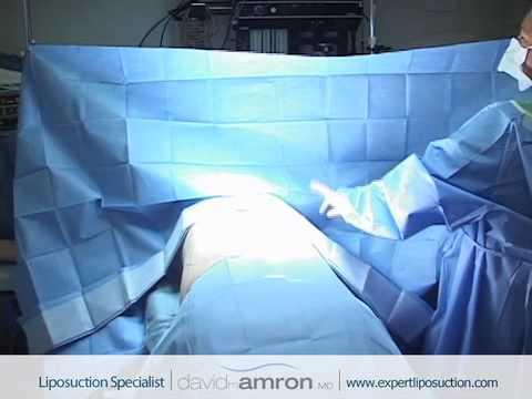 Abdomen Liposuction Surgery Stomach Lipo Surgeon Dr. David Amron