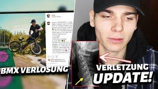 UPDATE zu meiner BMX VERLETZUNG + BMX GEWINNSPIEL AUFLÖSUNG 😲