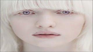 Blanquear piel mediante Biokinesis ! Eliminar manchas ! Comp...