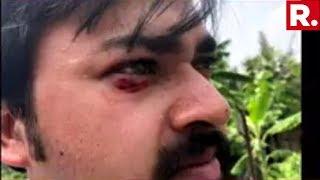 SHOCKING! Republic TV's Shawan Sen Attacked At Diamond Harbour In West Bengal