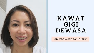 Video Kawat Gigi Dewasa #MyBracesJourney | irene ijoli download MP3, 3GP, MP4, WEBM, AVI, FLV Juni 2018