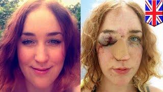 Мужчина схватил девушку за попу, после чего избил её