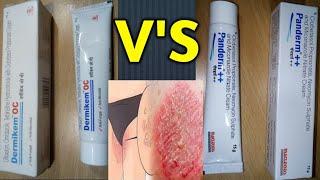 दाद-खाज खुजली खत्म Panderm++ V'S Dermikem OC cream review / anti-fungle, anti-bacterial cream review