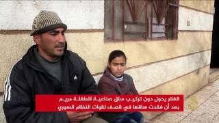 الفقر يحرم طفلة سورية من تركيب ساق صناعية