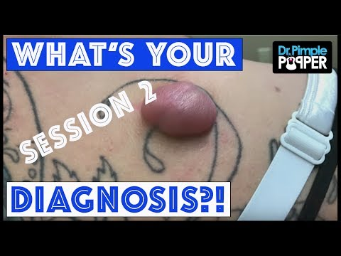 The Finale: What's your Dr Pimple Popper Diagnosis?