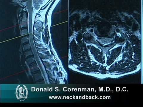 Cervical Radiculopathy Pinched Nerve In Neck Colorado