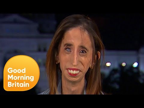 Activist Labelled 'World's Ugliest Woman' Reveals How It Changed Her Life  Good Morning Britain