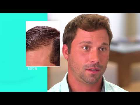 HairMax The Science of Hair Growth  Full TV Commercial