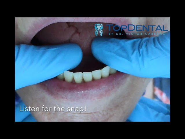Implant-Supported Dentures in Manta, Ecuador - TopDental has the experts!