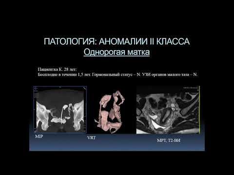 Богданова Е.О.«КТ- гистеросальпингография в диагностике причин бесплодия»