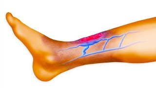 Do You Suffer From Poor Circulation Here's How To Solve The Problem With Our Tips