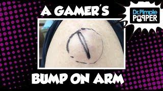 A Gamer's Bump