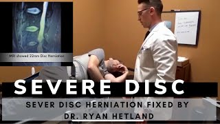 Severe Disc Herniation Patient Fixed by Dr Ryan Hetland, Gonstead Chiropractor in Inver Grove, MN