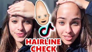 HAIRLINE CHECK on TikTok has me ScReaMiNG AGAIN🤦‍♂️😲🥚