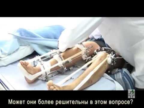 Хирургическое увеличение роста в Армении