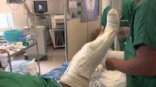 Attelle plâtrée pour une fracture du tibia (cruro-pédieuse )