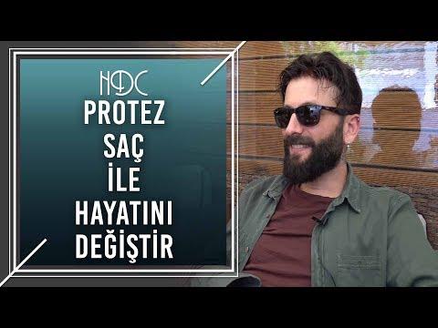 Protez Saç İle Hayatını Değiştir! - HDC