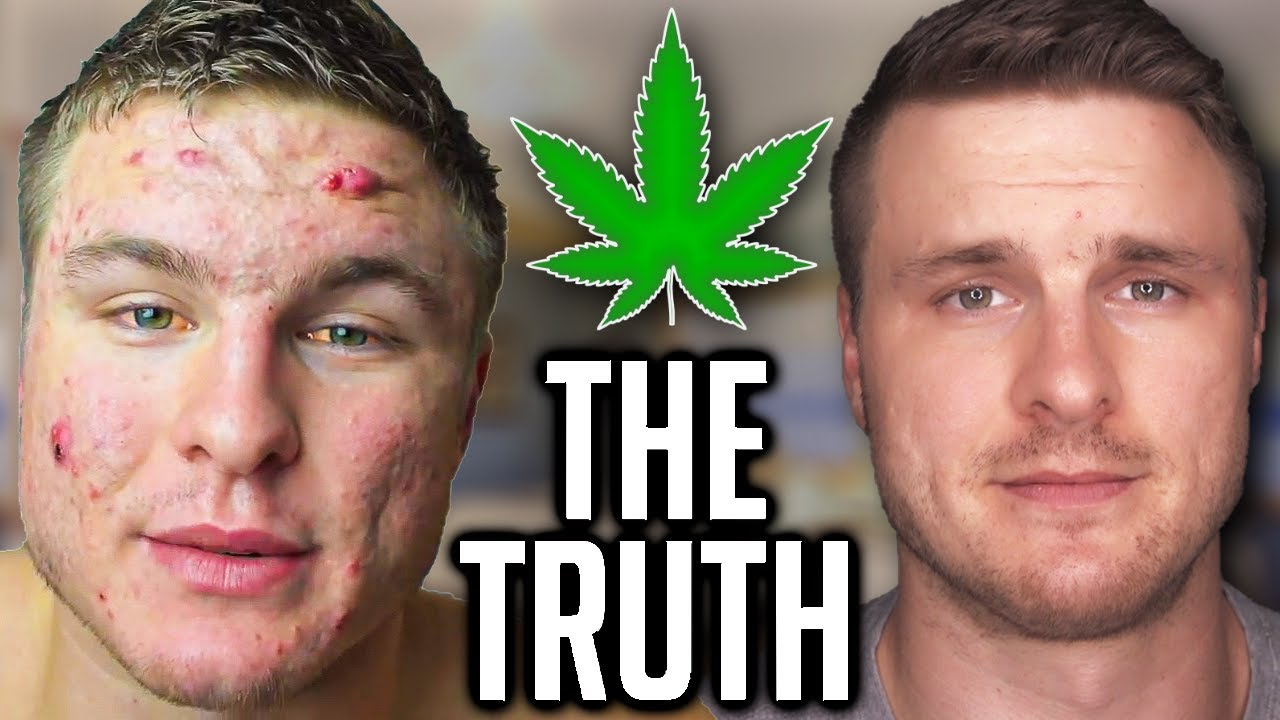 DOES WEED CAUSE ACNE? (I FINALLY HAVE THE ANSWER!)