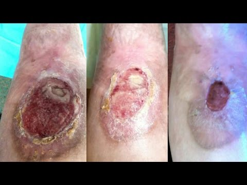 Honey cures skin sores bacterial infection ulcers