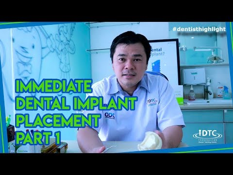 Immediate Dental Implant Placement Technique Part 1 - Indonesian Dental Training Center