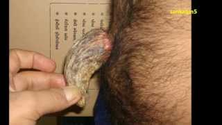 Sebaceous Horn - Extremely Rare But TRUE