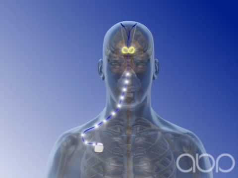 Deep Brain Stimulation - 3D Medical Animation || ABP ©