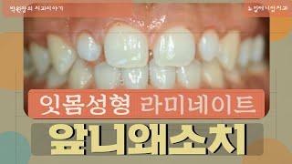 왜소치 잇몸성형 올세라믹치료