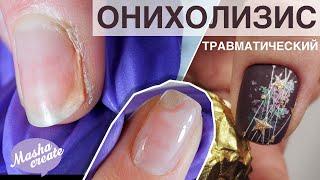 Травматический ОНИХОЛИЗИС 3 вида Что делать при отслоении ногтя Новогодний маникюр 2019 2020