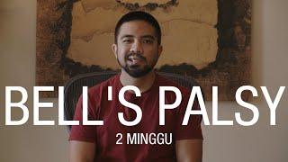 TRIBUN-VIDEO.COM - Sebagian besar orang menganggap penyakit Bell's Palsy adalah stroke karena kemiri.