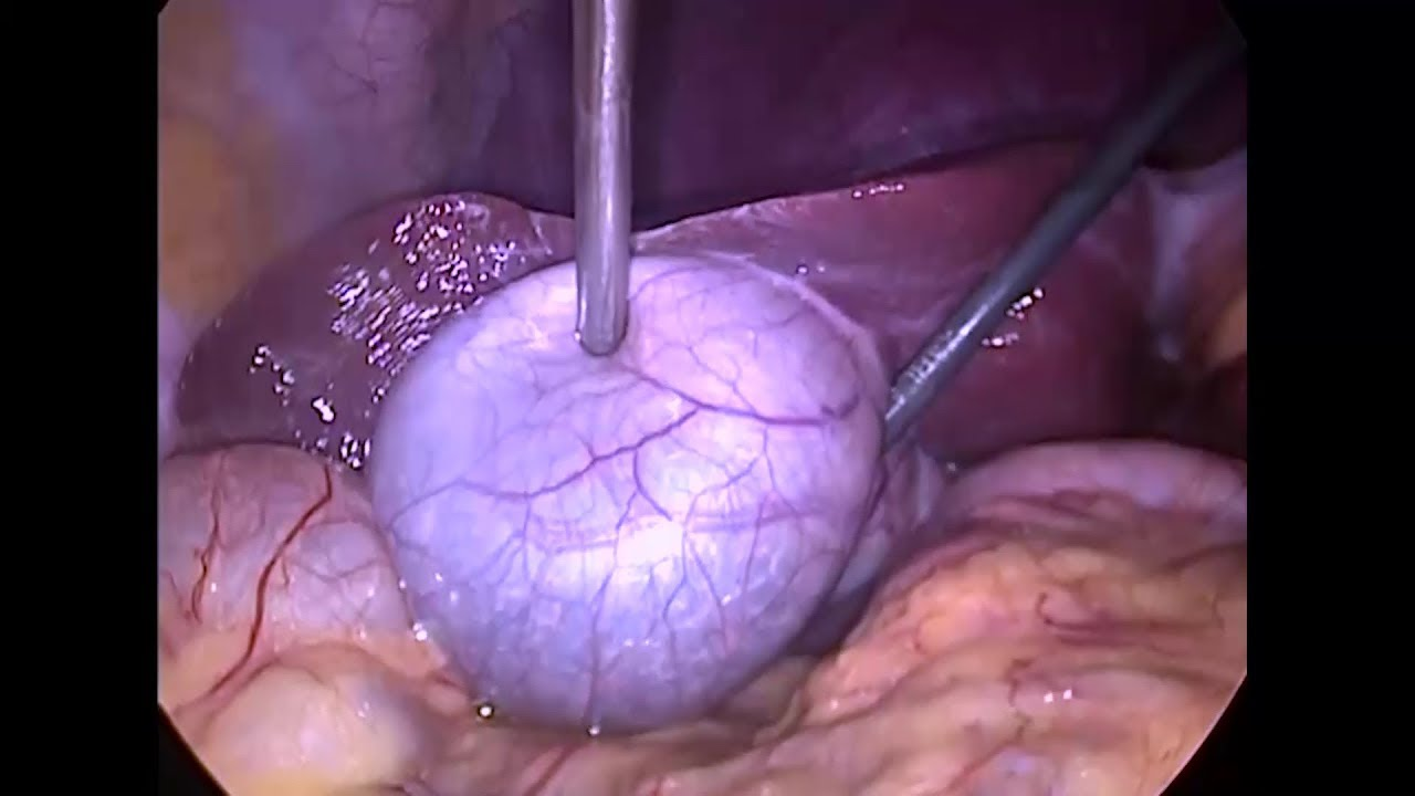 laparoscopic cholecystectomy  lap chole for gallbladder